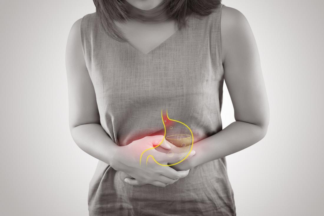 acid-reflux-stomach